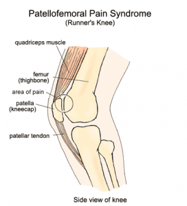 PFPS, runner's knee, patella-femoral pain, patella-femoral joint syndrome