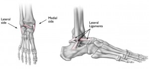 ankle injury, soft tissue injury, sprained ankle