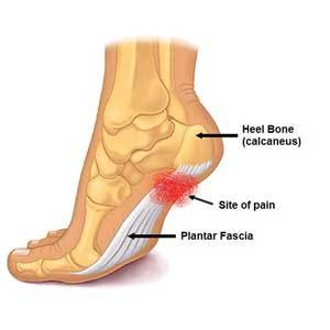 Plantar Fasciitis, Foot Pain